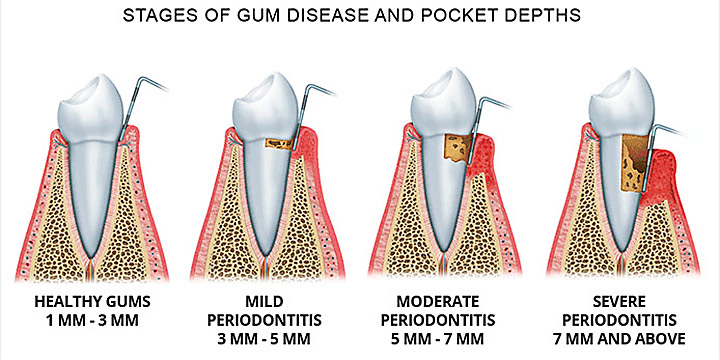 Example of the stages of periodontitis